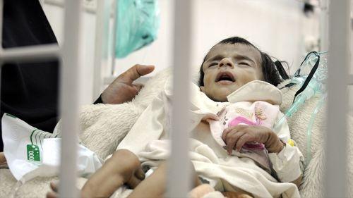 Yemen'de Yarım Milyon Çocuk Ölümle Karşı Karşıya