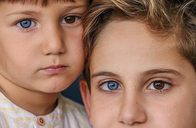 Gözlerinin Biri Mavi, Biri Kahverengi