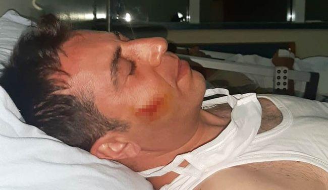 Belediye Zabıtalarına Saldırı.. 2 Yaralı