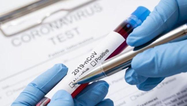 korona test negatif