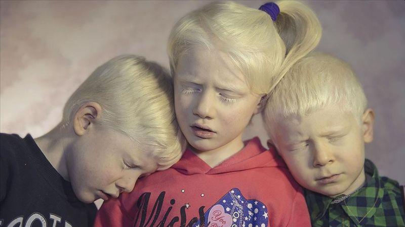 Albinizmli Bireyler İçin Krem Desteği Talebi